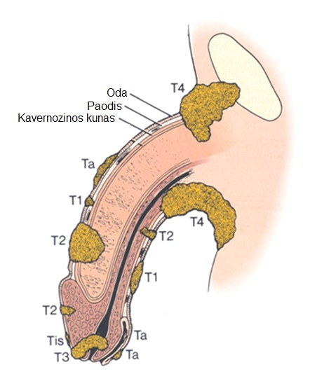 Vyriski lytiniu organu dydis Ar galima padidinti nari, kai masturbacija